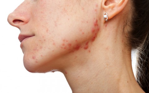 Acne Scars/Injury Scars