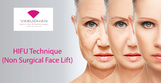 HIFU- A Non-Surgical Face Lifting Technique