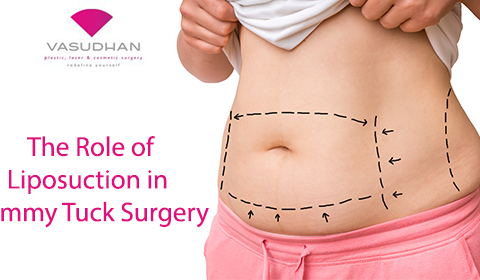 The Role of Liposuction in Tummy Tuck Procedure