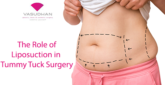 Liposuction in Tummy Tuck