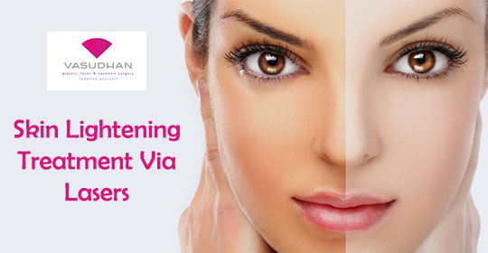 Skin Lightening Treatment via Lasers