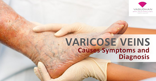 Varicose Veins – Symptoms and Causes
