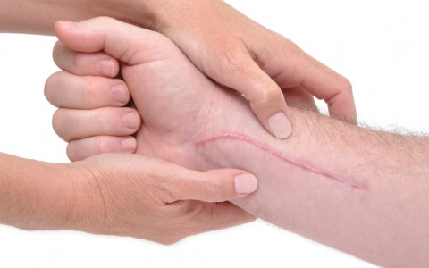 Hypertrophic Scars