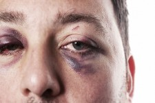 Maxillo Facial Trauma