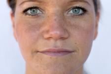 Age & Sun Spots/Melasma