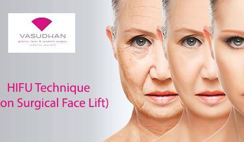 HIFU- A Non-Surgical Face Lifting Technique