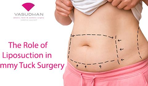The Role of Liposuction in Tummy Tuck Procedure