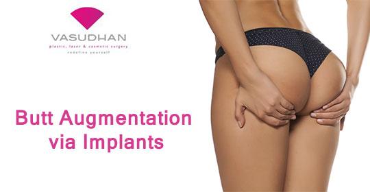 Butt Augmentation Via Implants