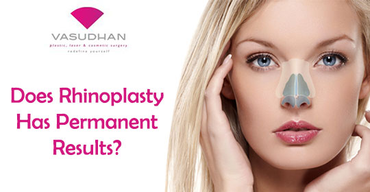 Does Rhinoplasty Has Permanent Results?