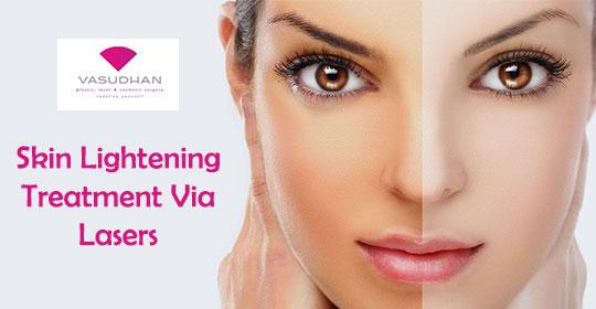Skin Lightening Treatment via Lasers