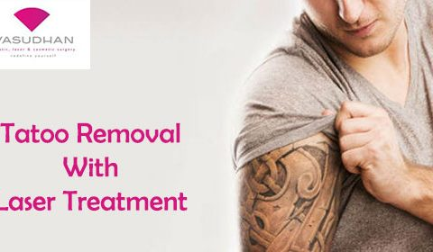 Tattoo Removal with Laser Treatment