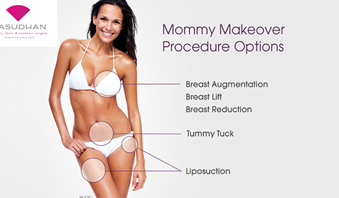 Why Mommy Makeover Recommended After Pregnancy