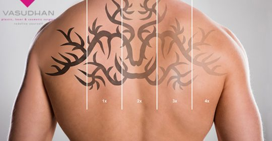 The Benefits and Side Effects of Laser Tattoo Removal